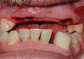 Серозный альвеолит