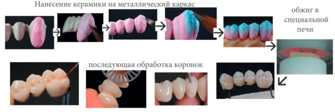 Схема изготовления коронок из металлокерамики