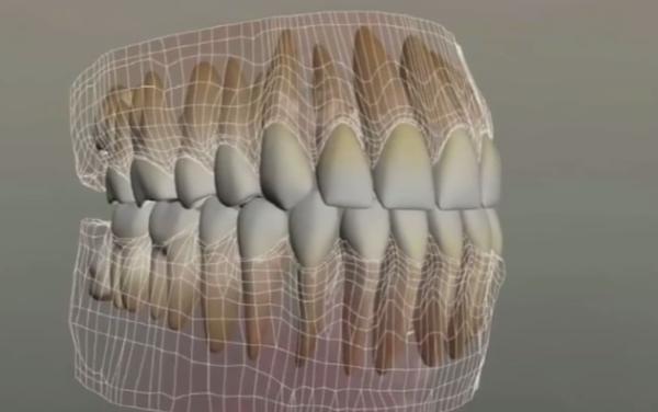 Схема коренных зубов
