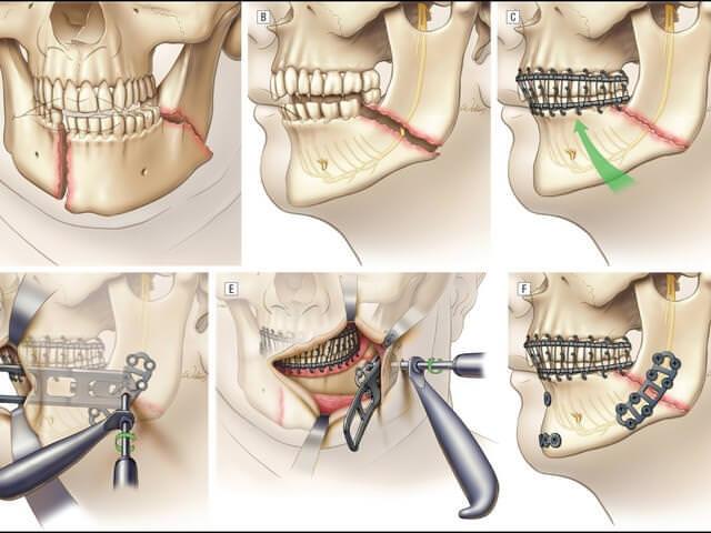 Схема лечения перелома челюсти