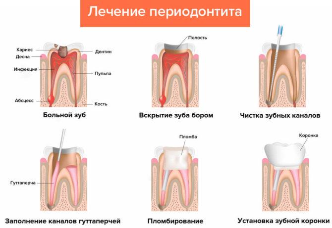 Схема лечения периодонтита