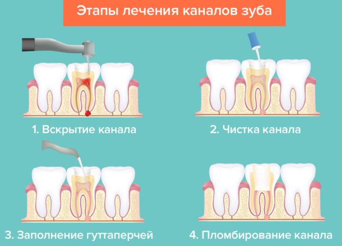 Схема лечения зубных каналов