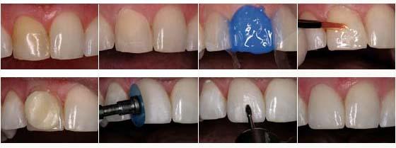Схема нанесения композитного материала на зуб
