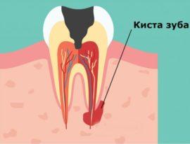 Схема образования кисты зуба