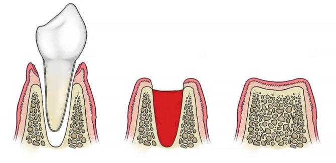 Схема образования кровяного сгустка в лунке