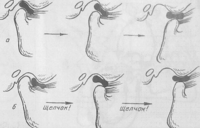 Схема образования щелчка в момент вывиха челюсти