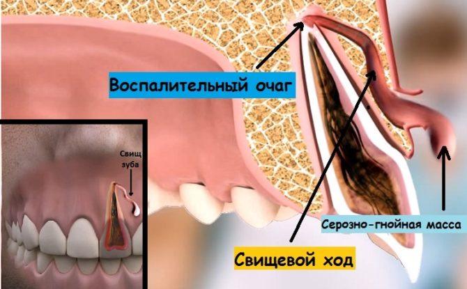 Схема образования свищевого хода
