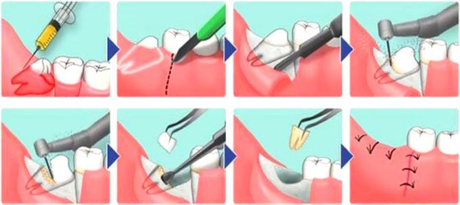 Схема сложного удаления зуба мудрости