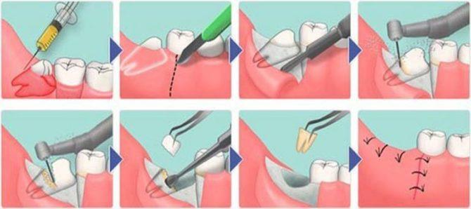 Схема удаления зуба мудрости