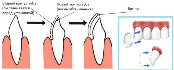 Как называются накладки на зубы для красоты