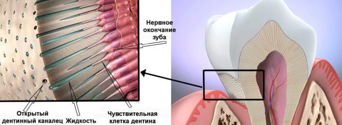 Схема возникновения зубной боли при открытых дентинных канальцах (2)