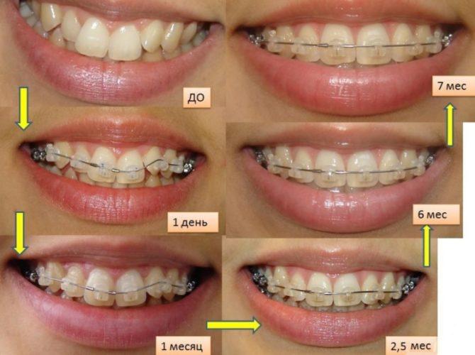 Схема выпрямления зубного ряда с помощью брекетов