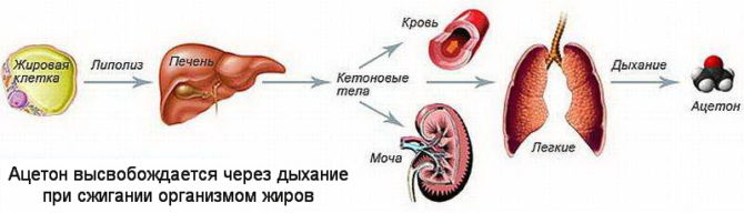 Схема высвобождения ацетона в организме человека