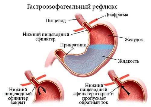 Схема заброса желудочного сока в пищевод