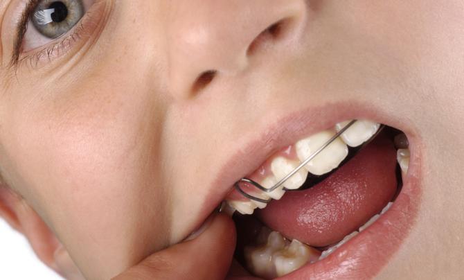 Скобы на зубах у ребенка