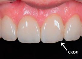 Скол коронки на переднем зубе