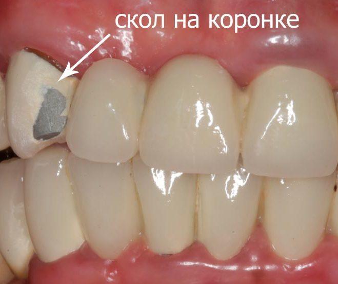 Откалываются зубы, что делать, если откололся кусочек зуба 79