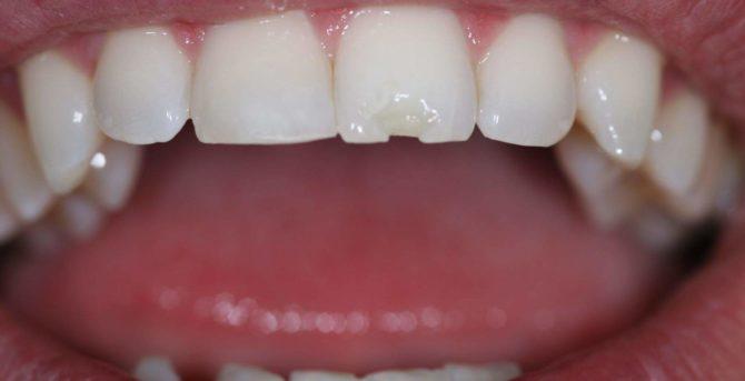Скол на зубе