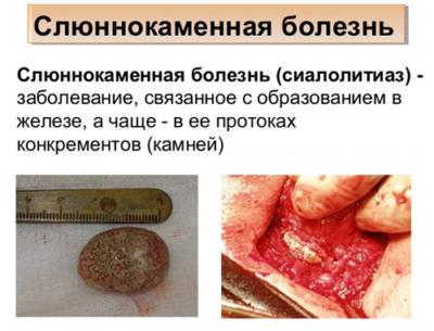 Слюннокаменная болезнь - определение