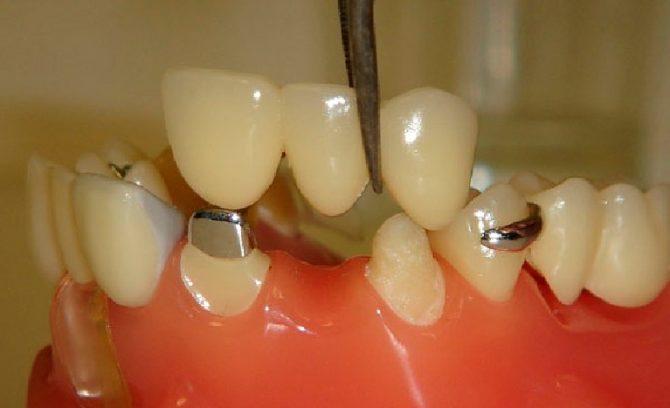Снятый мостовидный протез на передние зубы