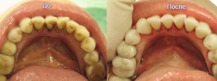 Санация зубов это