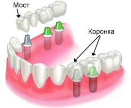 Способы протезирования зубов с применением имплантов