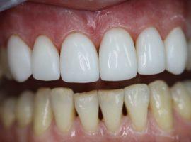 Сравнение естественных зубов и покрытых композитными винирами