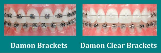 Сравнение обычных брекетов Дэймон и Damon Clear
