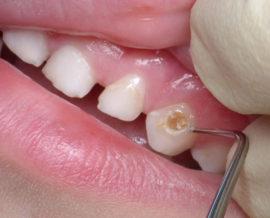 Средний кариес молочных зубов