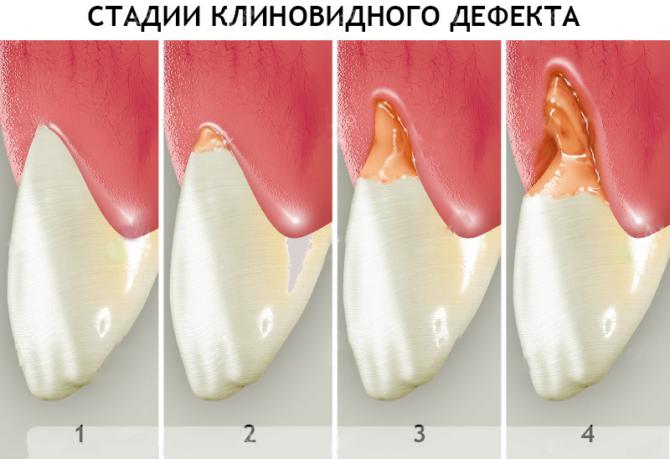Стадии клиновидного дефекта зубов