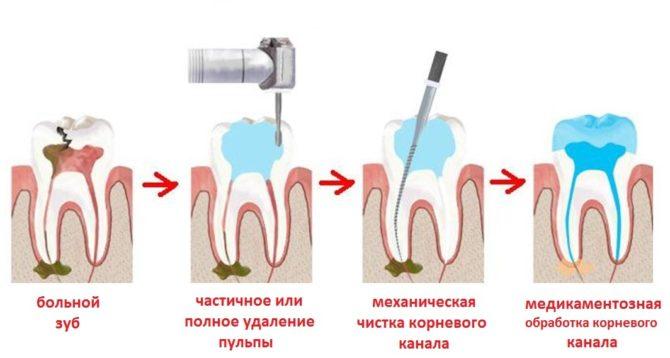 Стадии лечения зуба при свище