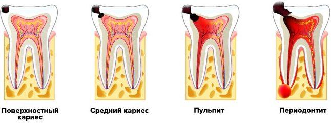 Стадии разрушения зуба