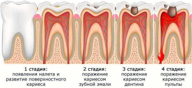 Стадии развития заболеваний зубов
