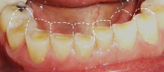 Стираемость зубов при бруксизме