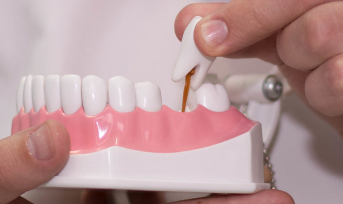Стоматолог ортопед устанавливает зубные протезы