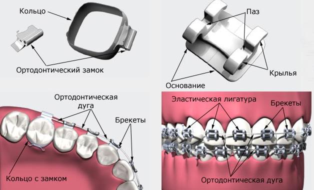 Строение брекет-системы