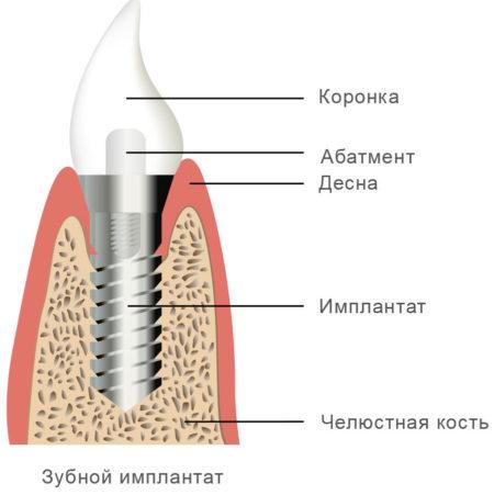 Строение искусственного зуба