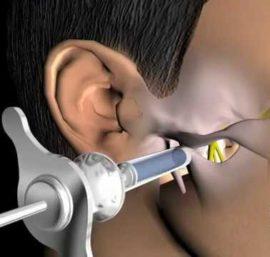 Стволовая анестезия