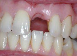 Сколько нельзя есть после удаления зуба