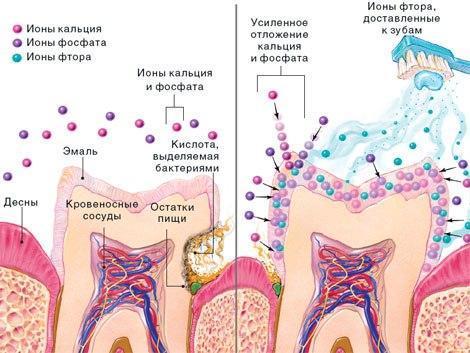 Суть реминерализации зубов