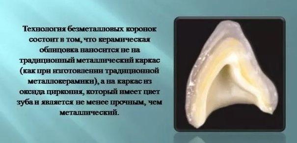Циркониевая коронка в разрезе