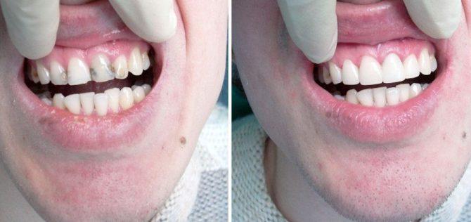 Терапевтический винир на передний зуб