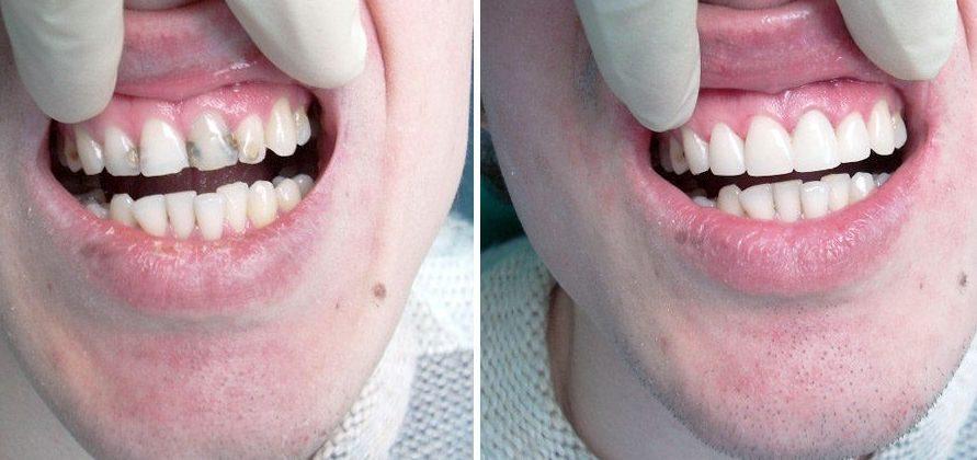 Ли виниры на нижние зубы