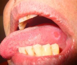 Травматический глоссит