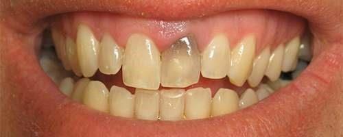 Травмированный зуб
