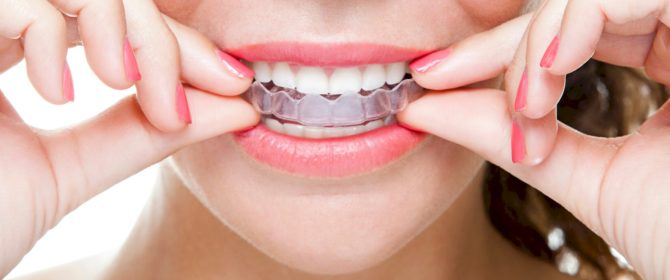 Трейнер на зубах