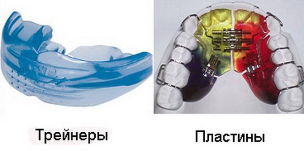 Трейнеры и пластины для выпрямления зубов