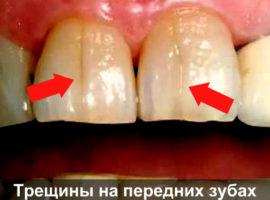 Трещины на передних зубах