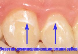 Участки деминерализации эмали зубов