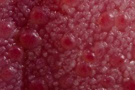 Участок языка с красными кровяными пупырышками под микроскопом